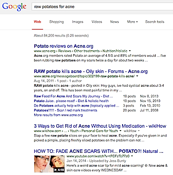 Search results for raw potatoes for acne.
